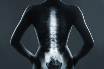 'Manage back pain with less sex'